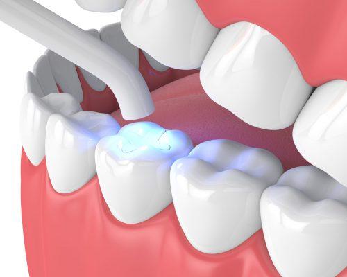 illustration-einer-Zahnfüllung