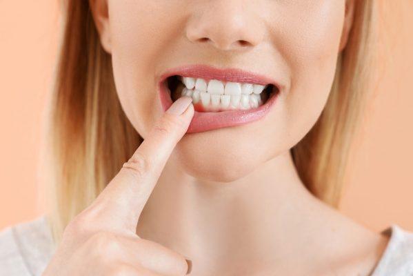 frau-zeigt-auf-ihre-zähne- Parodontitisbehandlung